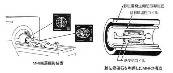 超伝導磁石の可能性と応用シリーズ-画像26